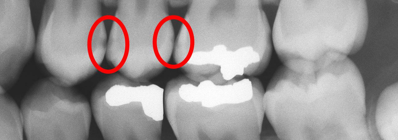 ร่องรอยของฟันผุจากฟิล์มเอ็กซเรย์