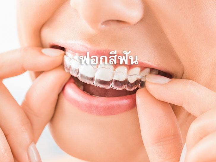 ฟอกสีฟัน-Portfolio