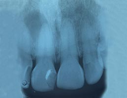 ฟันหน้ารากฟันมักจะตรง