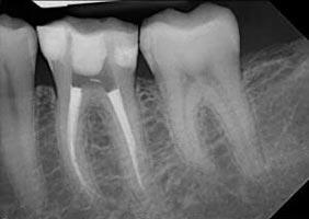 ฟันหลังรากฟันอาจจะโค้งและการรักษามักจะซับซ้อน