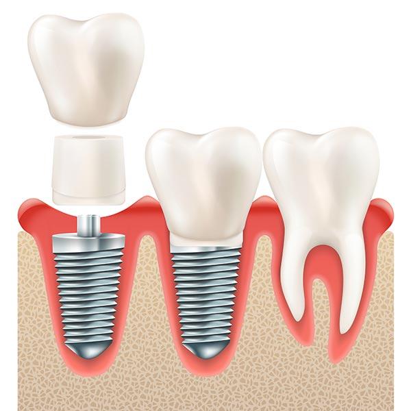 รากฟันเทีนม เมื่อติดตั้ง