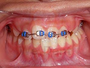 คนไข้ฟันล่างคร่อมฟันบน-WeDent-Clinic