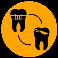 จัดฟันแบบร่วมกับการผ่าตัดกรณีฟันล่างคร่อมฟันบน-WeDent-Clinic