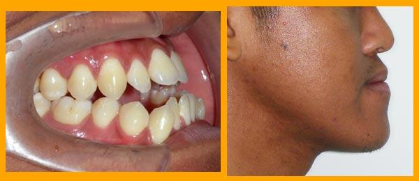 ฟันล่างค่อมบนจากความผิดปรกติของขากรรไกร-WeDent-Clinic