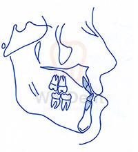 มุมฟันก่อนจัดฟันของเคสฟันล่างคร่อมฟันบน-WeDent-Clinic