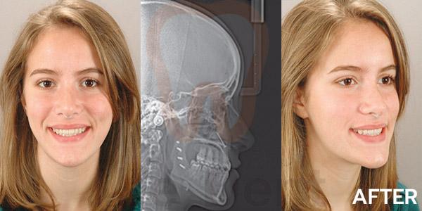 รูปตัวอย่างหลังการรักษาของคนไข้จัดฟันร่วมกับการผ่าตัด