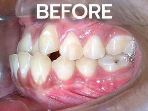 รูป-case-ตัวอย่างฟันล่างคร่อมฟันบนก่อนรักษาแบบไม่ผ่าตัด-WeDent-Clinic