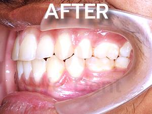 รูป-case-ตัวอย่างฟันล่างคร่อมฟันบนหลังรักษาแบบไม่ผ่าตัด-WeDent-Clinic