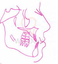 หลังผ่าตัดกรณีฟันล่างคร่อมฟันบน-ขากรรไกรบน_ล่างและมุมฟันสมดุลกันมากขึ้น-WeDent-Clinic